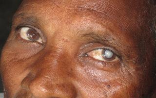 Aktion Augen Blick