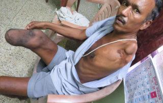 Spende für behinderten Mann in Indien